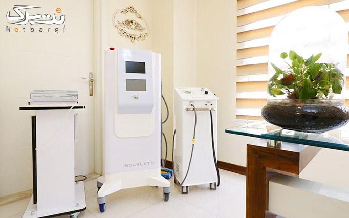 تزریق بوتاکس در مطب دکتر فاطمه طرزی