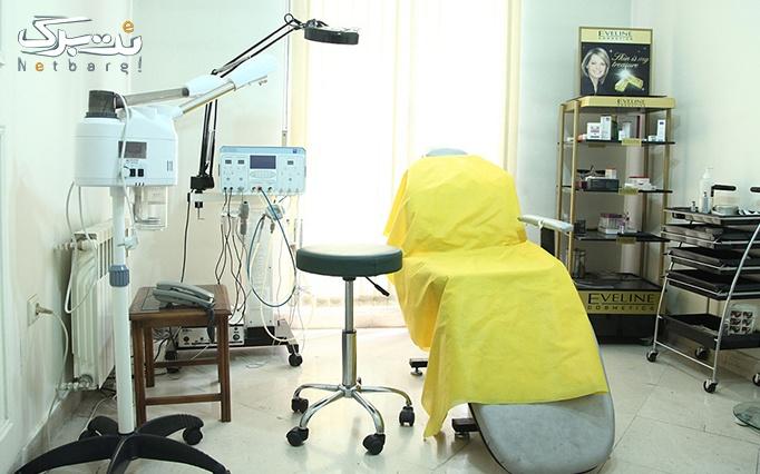 جراحی پلک بالا در مطب دکتر میر محسنی