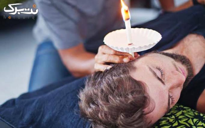 شمع درمانی گوش در مطب دکتر صدفی