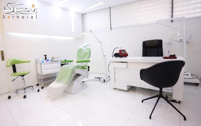 رفع تاتو دستگاه Qswitch 532 در مطب دکتر کریم زاده