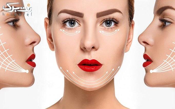 جوانسازی صورت با نخ کلاژن در مطب دکتر کریم زاده
