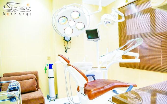 بلیچینگ همراه با جرمگیری در مطب دکتر سید محسنی