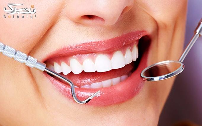 پر کردن دندان با مواد درجه یک