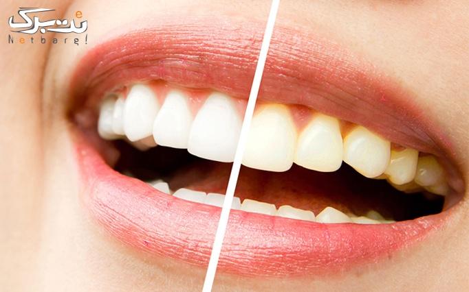 جرم گیری دندان در مرکز دندانپزشکی لاویه