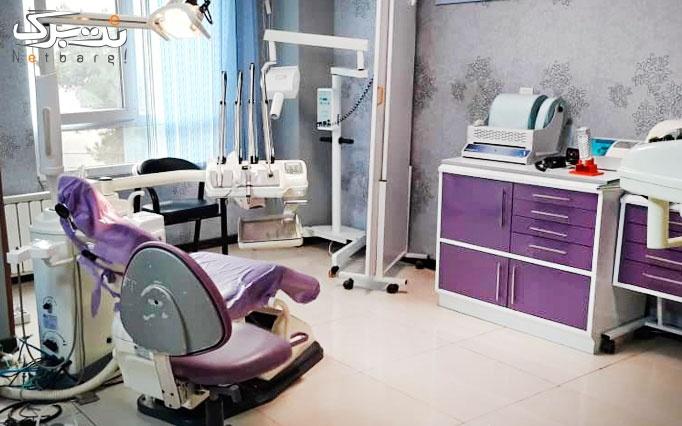 جرم گیری و بروساژ دندان در مطب دکتر زنگنه