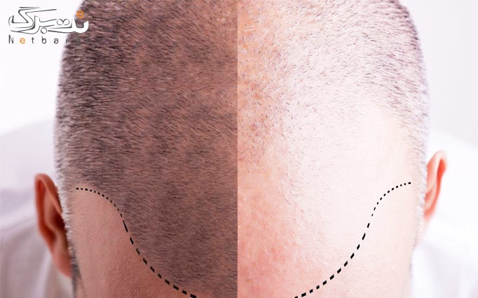 PRP سر یا صورت در مطب دکتر نیازی