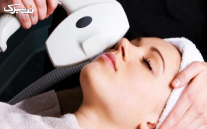 لیزر موهای زائد در کلینیک مهرزاد