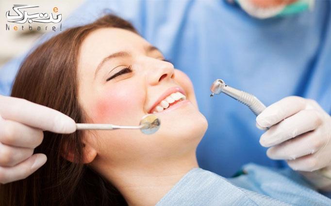 بن تخفیف خدمات دندانپزشکی در مطب دکتر فرهمند