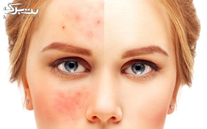 درمان کک و مک صورت در مطب دکتر سهرابی