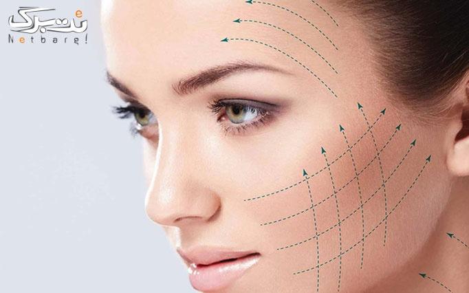 هایفوتراپی کل صورت و گردن در مطب دکتر سهرابی