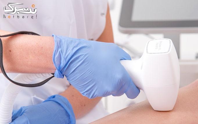 لیزر الکساندرایت پلاتینیوم 2019 در مطب دکتر رفیعی