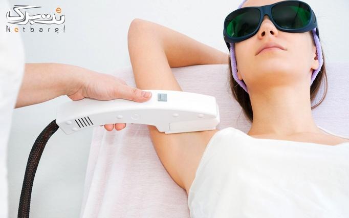 لیزر موهای زائد با دستگاه shr 2020 مرکز لیزر شقایق