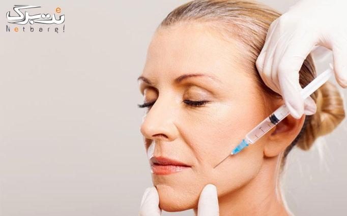 تزریق بوتاکس مسپورت در مطب دکتر حنانه عظیمی