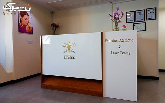 لیزر الکساندرایت در مرکز زیبایی و لیزر الیزه 2