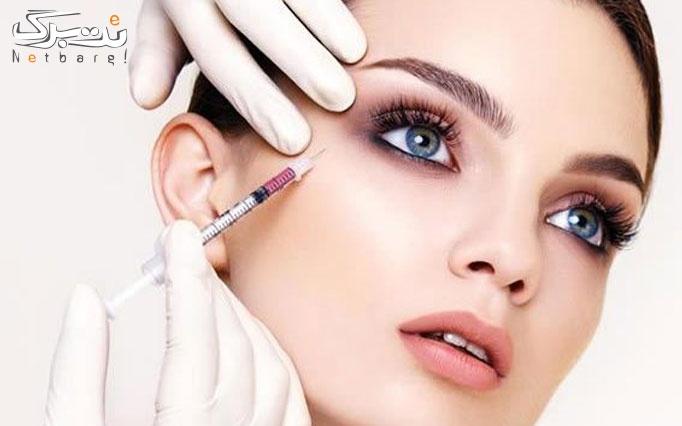 تزریق ژل صورت در مطب دکتر سهرابی