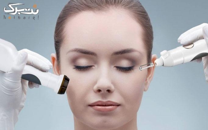 لیفت و جوانسازی صورت با نخ کلاژن در مطب دکتر سهراب