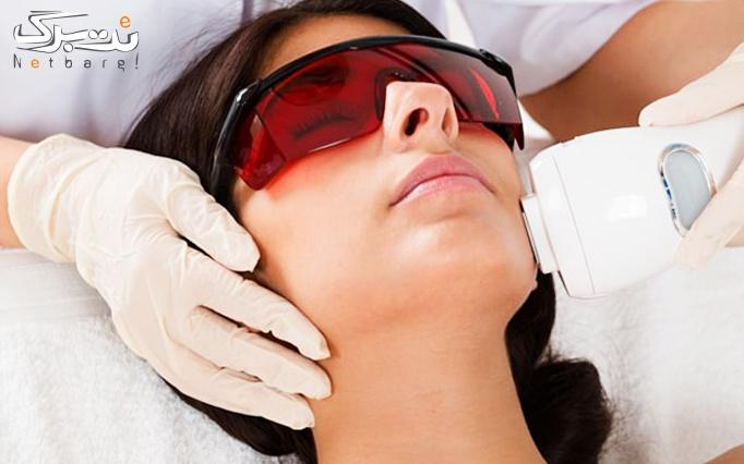 لیزر موهای زائدبا دستگاه الکس دایود مطب دکتر شیلچی