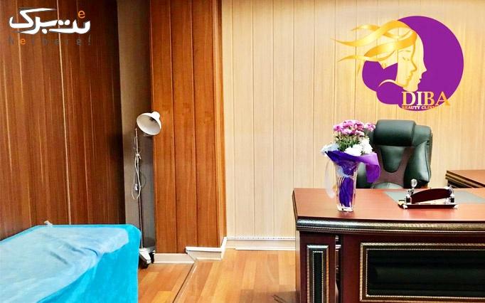 تزریق فیلر و بوتاکس در کلینیک زیبایی دیبا