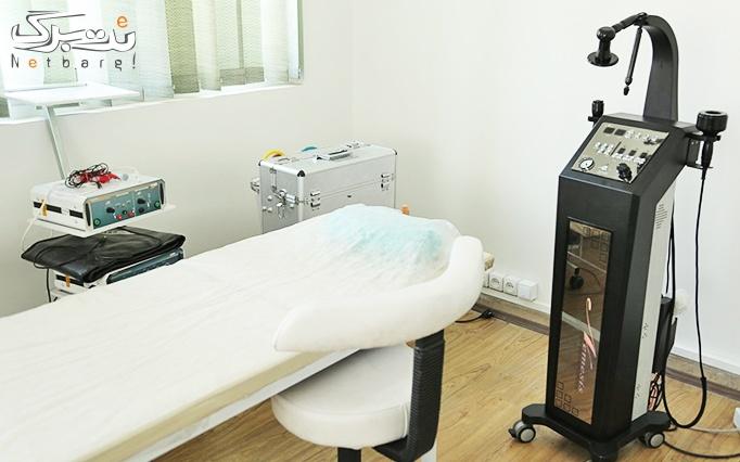 فیبروز ابرو در مطب دکتر نانکلی