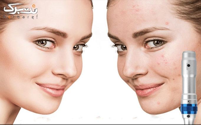 میکرونیدلینگ پوست در مطب دکتر نصیری