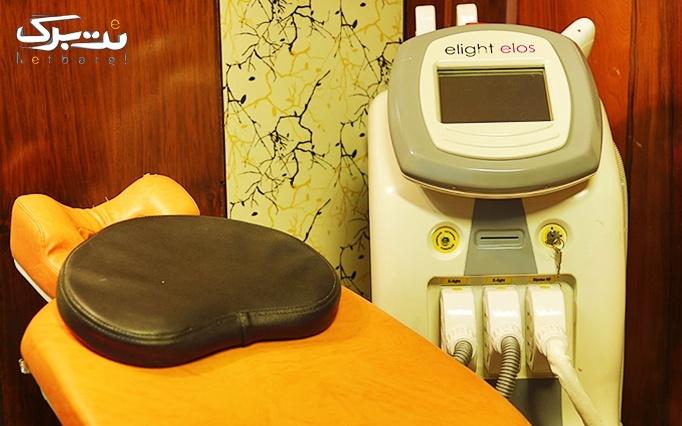 لاغری موضعی با RF در مرکز پزشکی سلکتیو