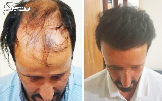 کاشت مو و ابروی طبیعی در مطب دکتر حقایقی