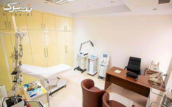 لیزر الکساندرایت(اندی یگ) در مطب دکتر سمیعی