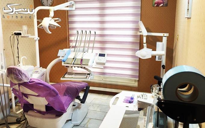 کامپوزیت دندان توسط دکتر پازوکی