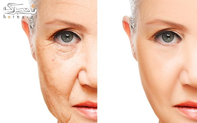 جوانسازی پوست در کلینیک ملل