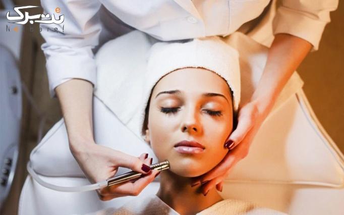 لیزر موهای زائد ایلایت در مطب دکتر نوش مهر