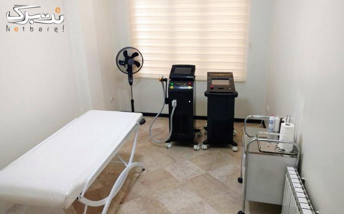 لیزر الکساندرایت  پلاتینیوم پلاس در مطب دکتر فخاری