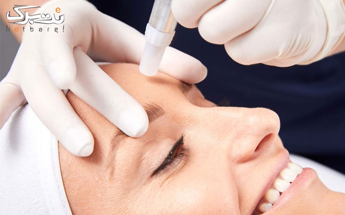 میکرودرم و پاکسازی پوست در مطب دکتر سعیدی