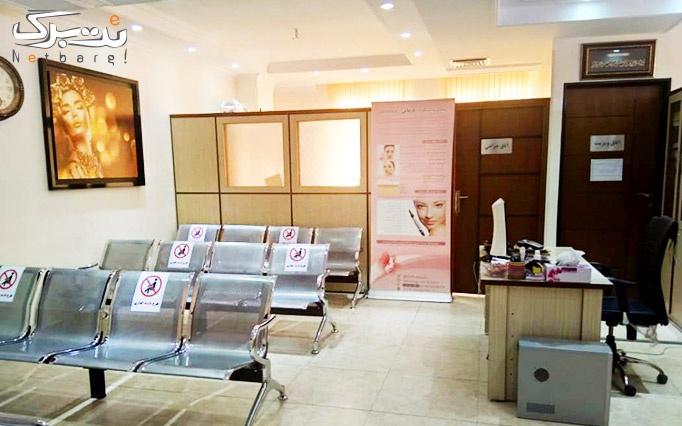 تزریق بوتاکس در مرکز تخصصی زیبایی کیاسا