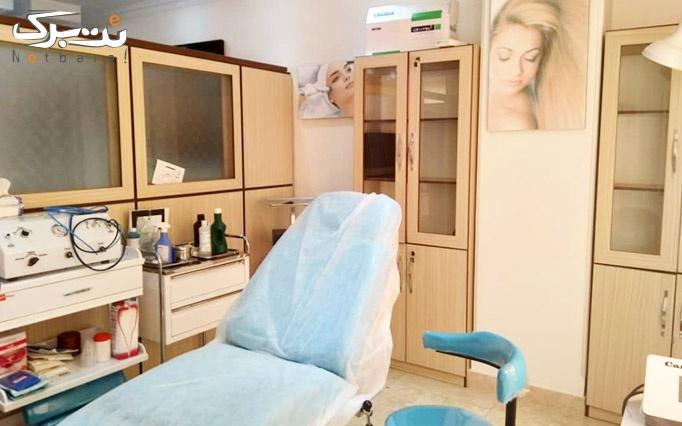لیزر موهای زائد در مرکز تخصصی زیبایی کیاسا