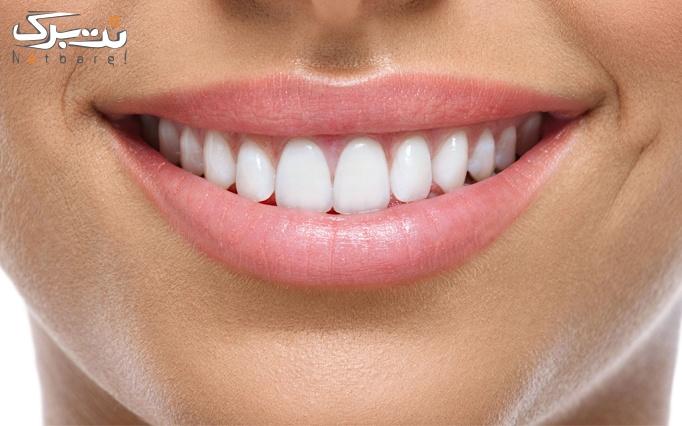 کامپوزیت دندان توسط دکتر جوادیان(کلینیک پاسارگاد)