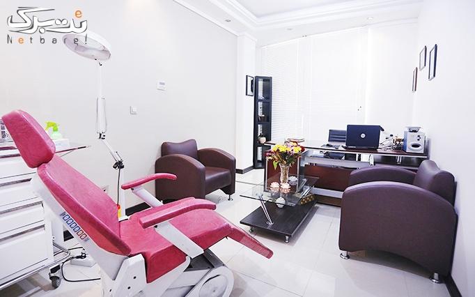 میکرودرم پوست در مطب دکتر خلجی