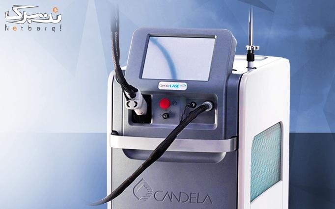 لیزر الکس کوترا سرد 2020 در مرکز لیزر دکتر رجبلو