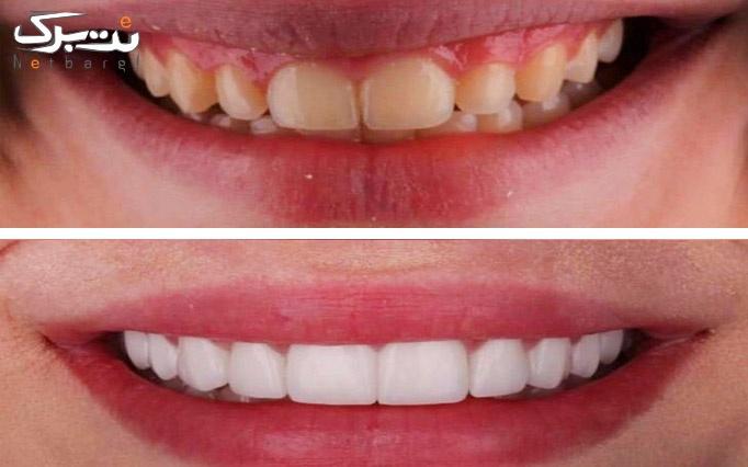 انجام خدمات متنوع دندانپزشکی دکتر قائمی