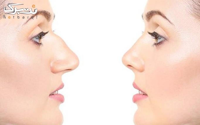پلاسماجت بینی و پلک در کلینیک زیبایی تک