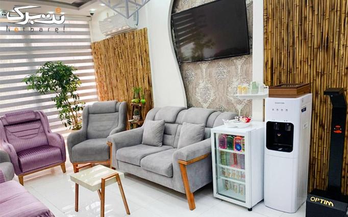 لیزرموهای زائد با دستگاه الکس 2019 در مرکز ابریشم