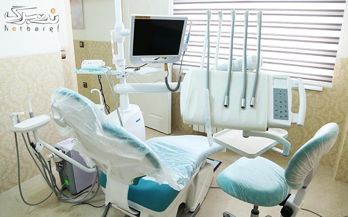 جرم گیری و بروساژ دندان در مطب خانم دکتر ایرانی