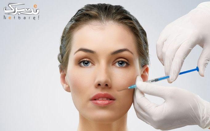 تزریق بوتاکس مسپورت در مطب دکتر نجمه کمالی
