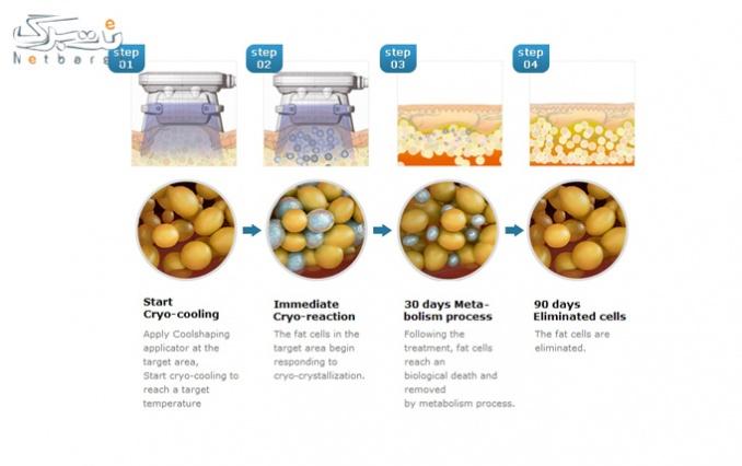 حذف سلول های چربی با کرایولیپولیز در آسانا