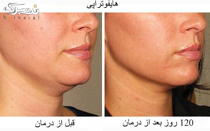 هایفوتراپی در کلینیک تخصصی پوست و مو تندیس سلامت