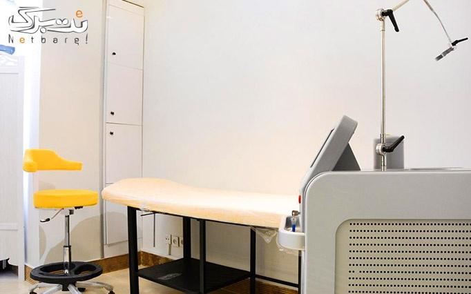 لیفت صورت با هایفوتراپی 4 بعدی در مرکز کامیله