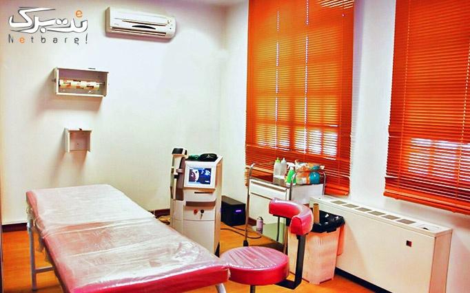 لیزرموهای زائد با دستگاه مدیو استار در دکتر ارجمند