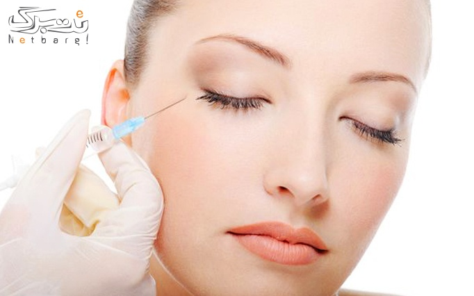 تزریق بوتاکس مسپورت در  مطب دکتر پور رنجبر