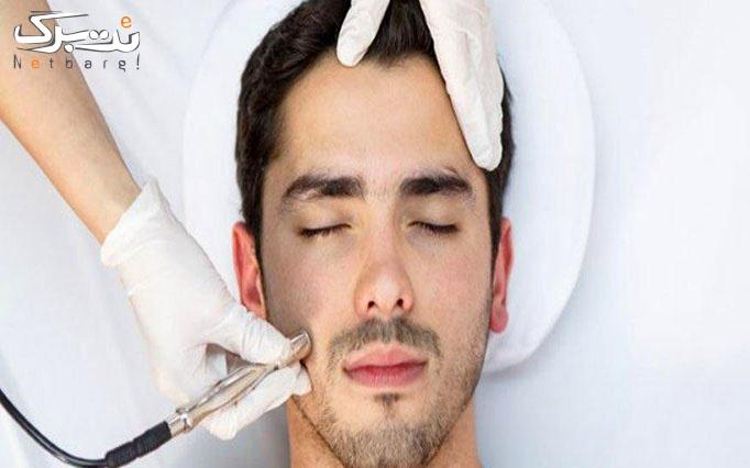 میکرودرم در کلینیک پوست و مو دنیز