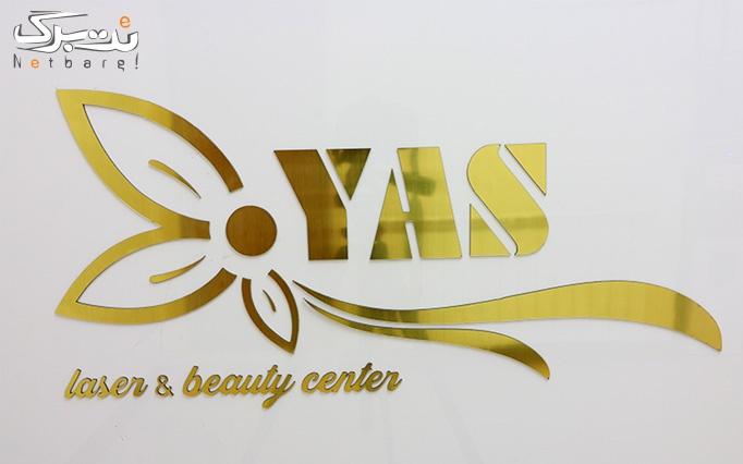 لیزر موهای زائد با دستگاه الکساندرایت در مرکز یاس