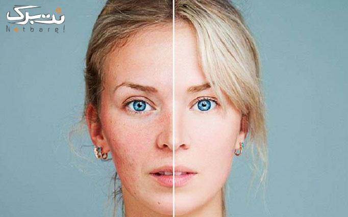 خدمات جوانسازی پوست کلینیک زیبایی مریم